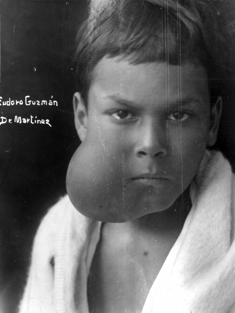 El valor de los registros fotográficos en la era preantibiótica